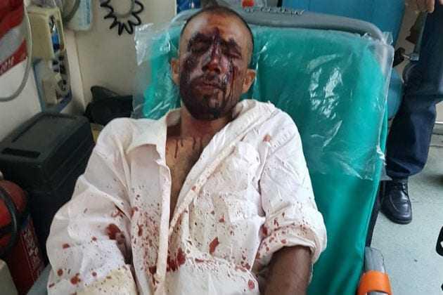 Δολοφονική επίθεση εναντίον μεταναστών εργατών γης στον Ασπρόπυργο